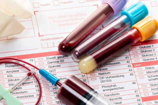 Blood Test Cancer